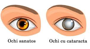 simptome de ochi de helmint și tratament)
