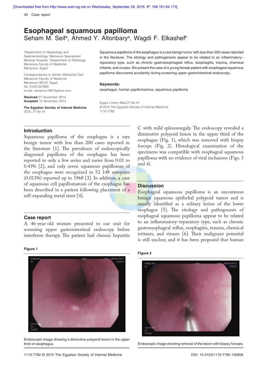 Squamous papilloma esophagus histopathology, Diagnostic Pathology GI Endoscopic Correlations