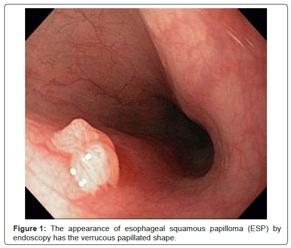 squamous papilloma oesophagus