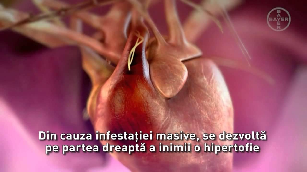 tratamentul viermilor inimii umane)