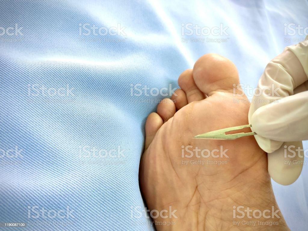 Wart on foot sole - divastudio.ro