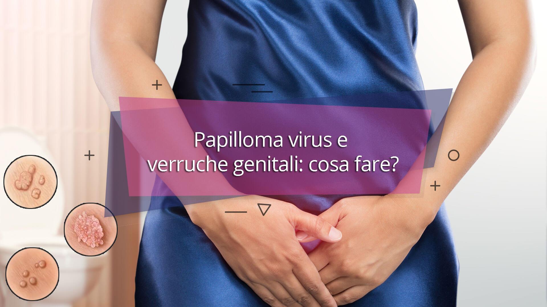 verruche del papilloma virus)