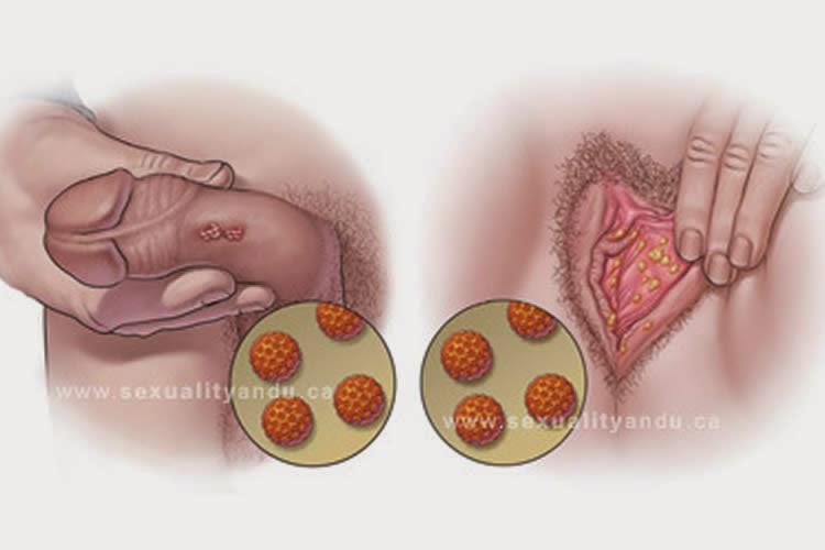 virus papiloma sintomas