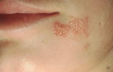 virusi herpes