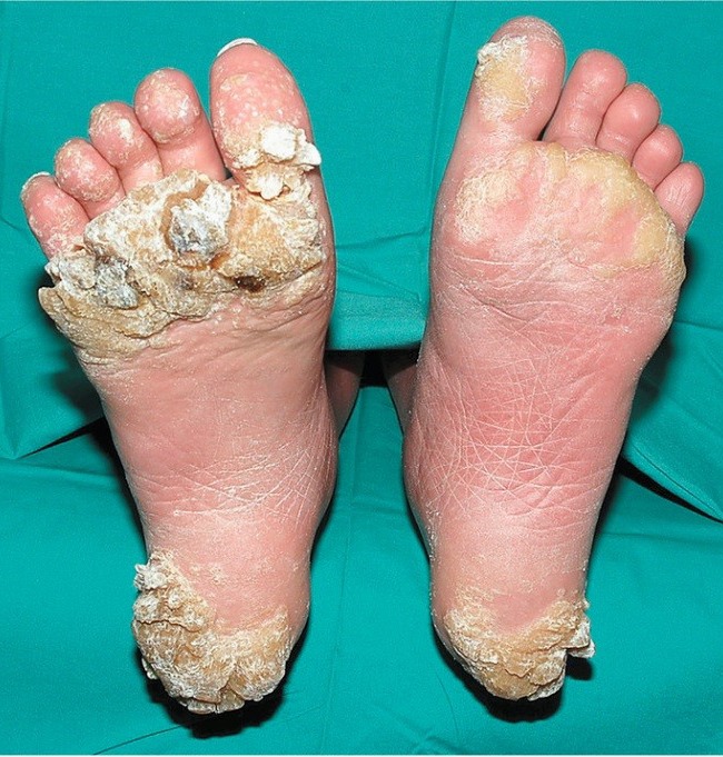 warts on hands prevention helminth therapy goal