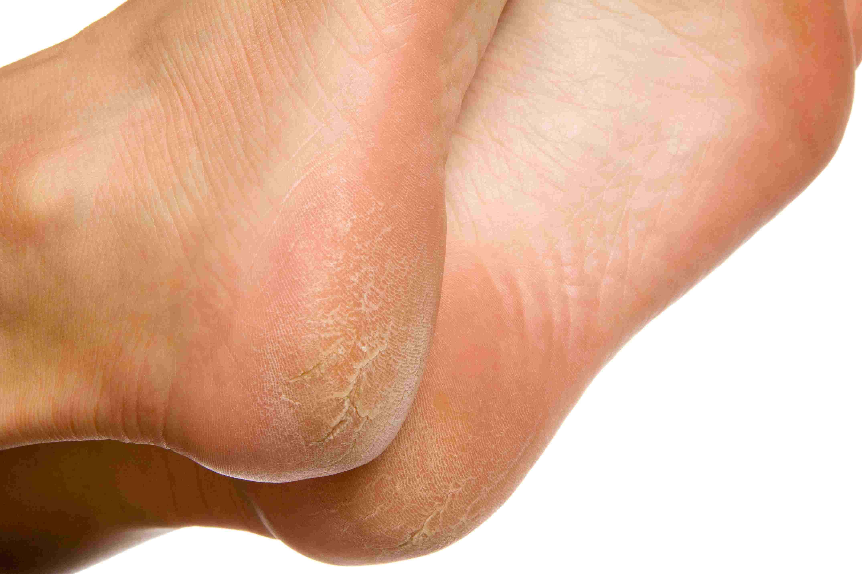 wart on foot under skin
