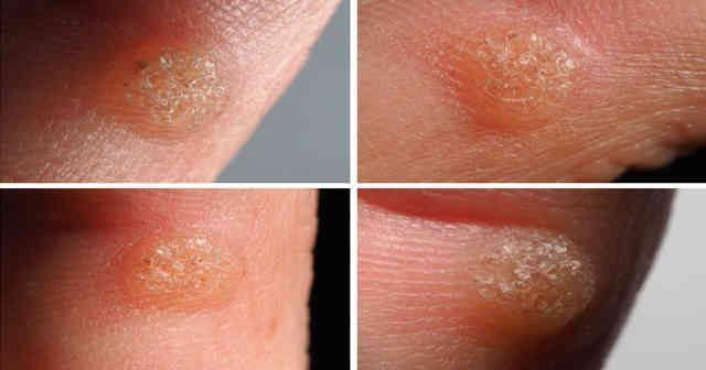 oxiuros orina viermi în tratamentul copiilor cu nematode