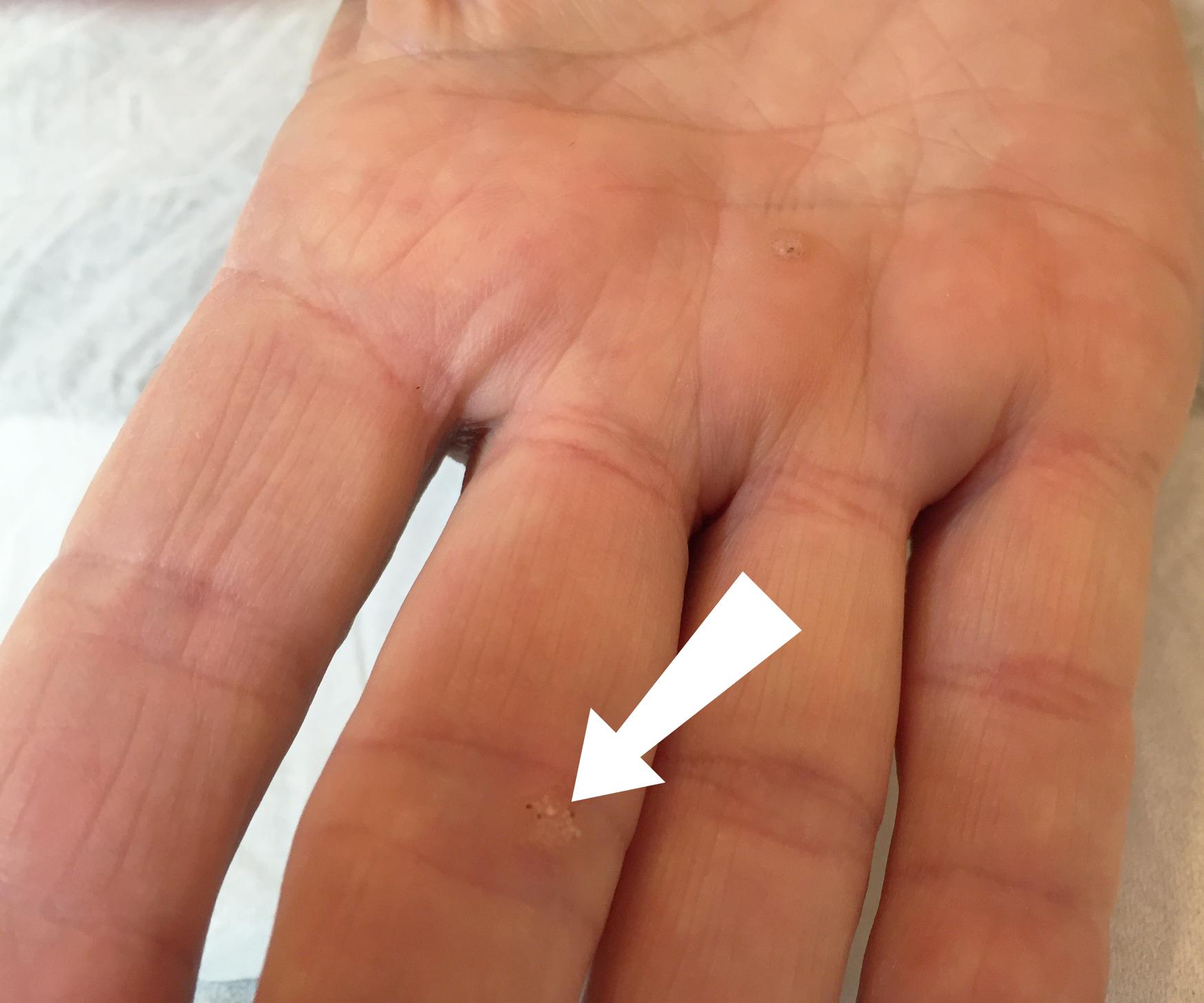 warts on hands and feet during pregnancy deparazitare la grădiniță